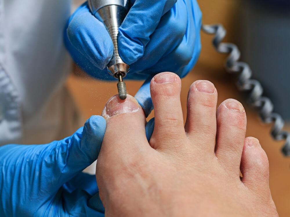 Nail Reconstruction - Happy Feet Foot Clinic Dungannon