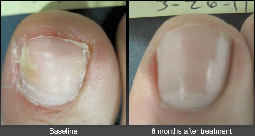 Toenail-Fungus-Before-After-Laser-Treatment - Happy Feet Foot Clinic ...